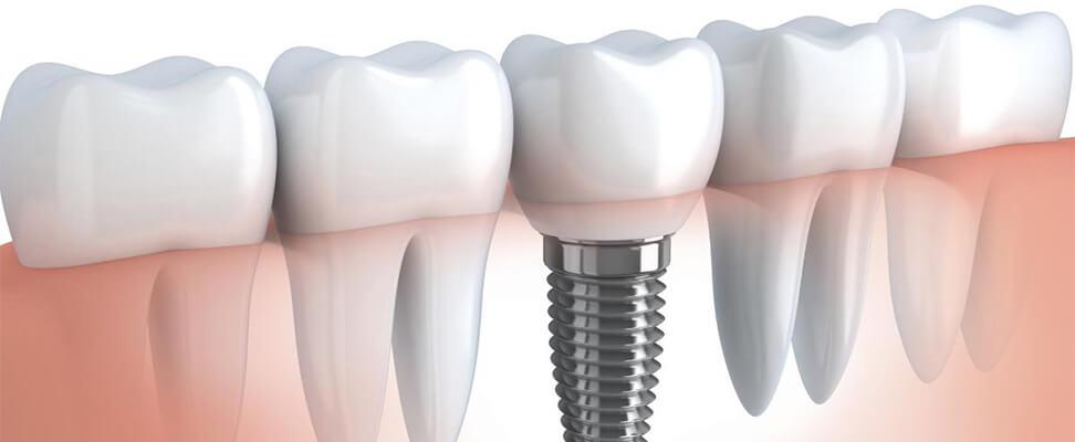 Современные методы восстановления зубного ряда