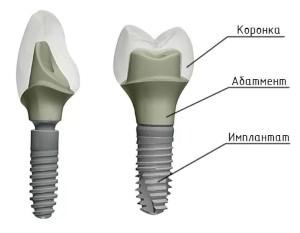 Абатменты для имплантов