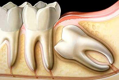 Болит зуб мудрости – что делать?!