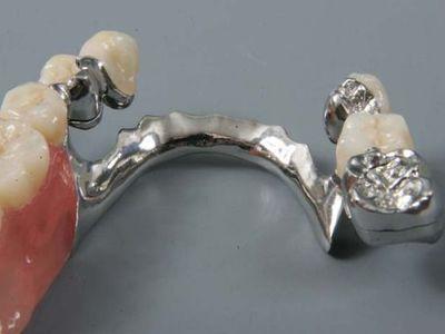 Бюгельное (простое и шинирующее) протезирование, с использованием аттачментов и фрезерных конструкций