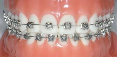Фиксация одного ортодонтического кольца