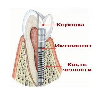 Имплантология
