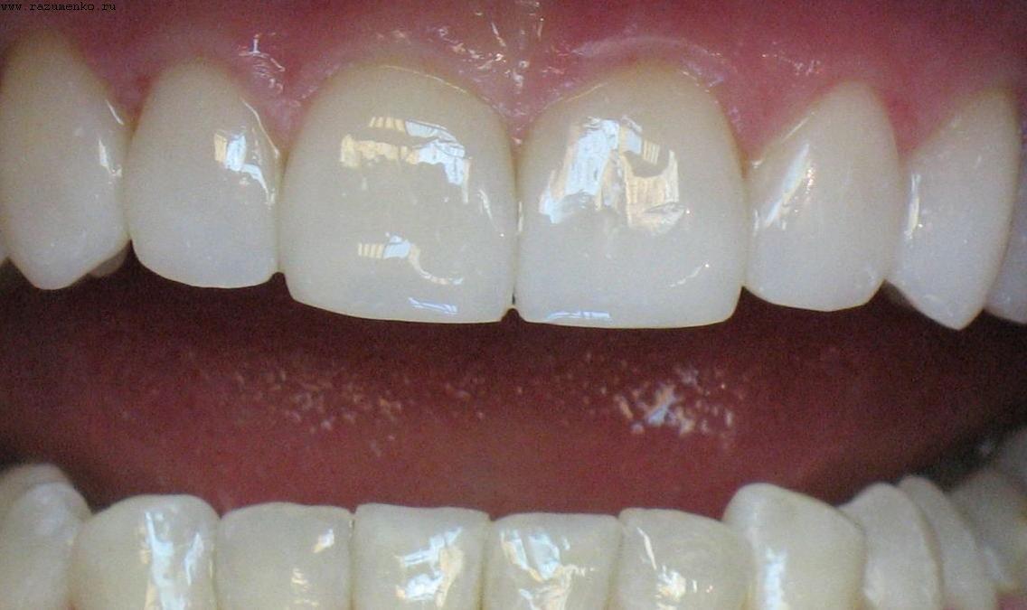 Исправление дефектов центральных зубов