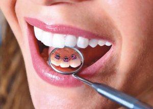 Изготовление искусственного зуба на ортодонтической пластинке