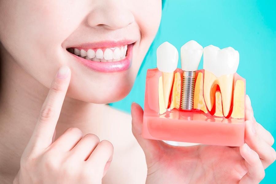 Рассрочка на классическую имплантацию зубов