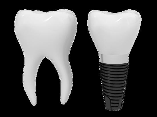 Имплантация зубов в рассрочку