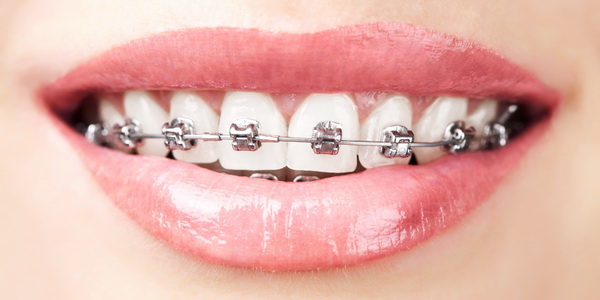 Как исправить неправильный прикус зубов