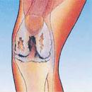 Воспалительные заболевания костей и суставов