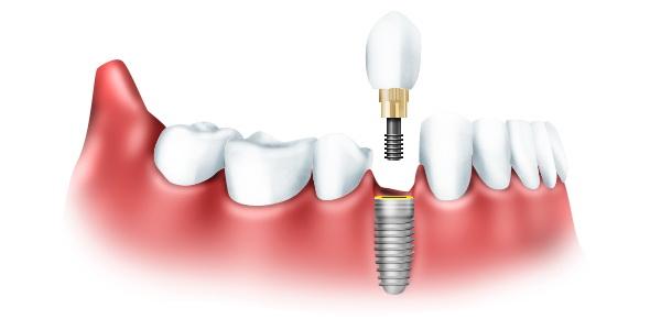 Возможности имплантации зубов
