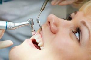 Профилактическая полировка зубов