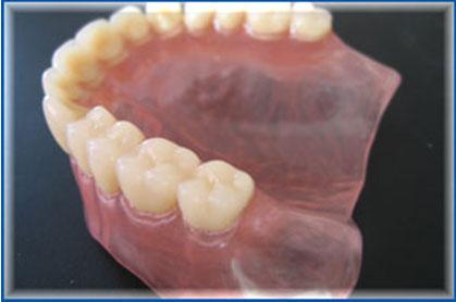 зубные нейлоновые протезы фото