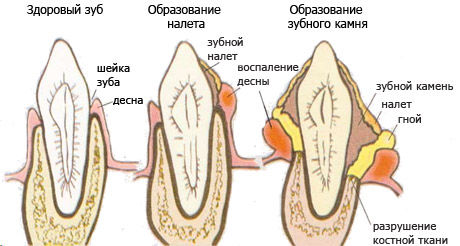 Как образуется зубной налёт