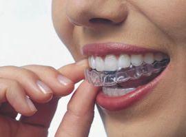 Как убрать промежутки между зубами