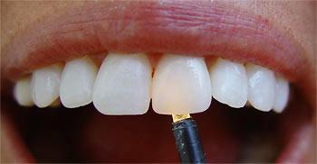 Оксид циркония – белое золото в протезировании зубов