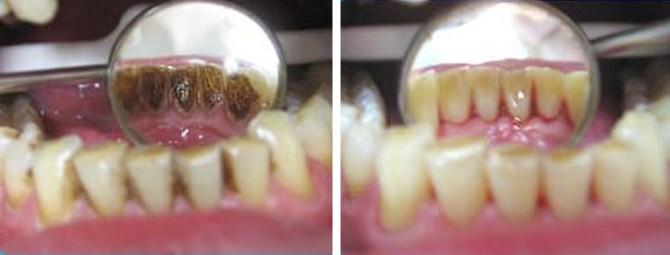 Удаление зубного камня и зубного налета