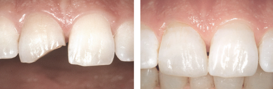 Восстановление эмали зубов, дефектов зубной эмали, коронки зуба